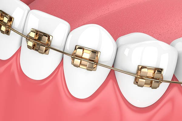 Gold Braces Photo